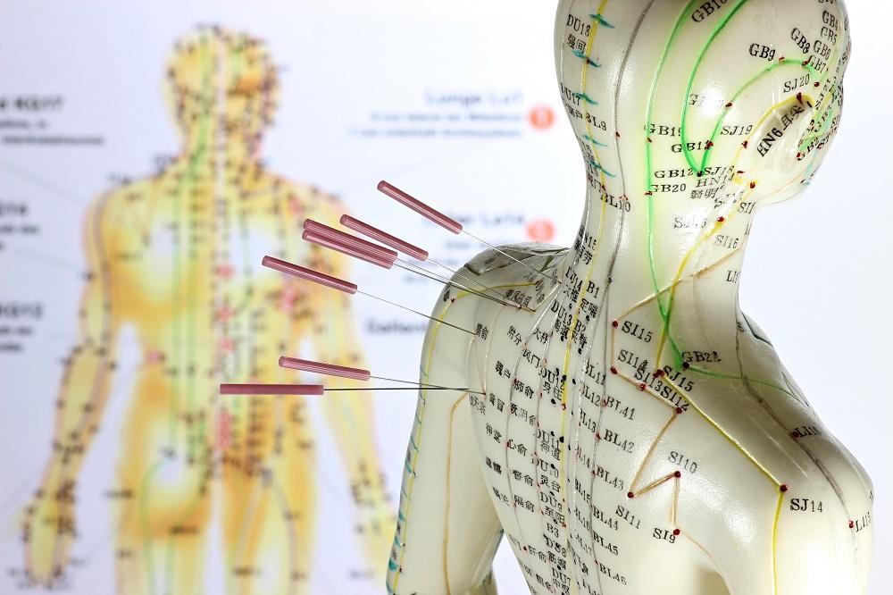 acupuntura cervicalgia
